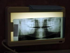 Tandlæge røntgen